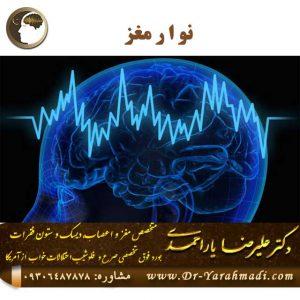 نوار مغز