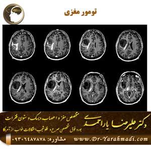 تومور-مغزی