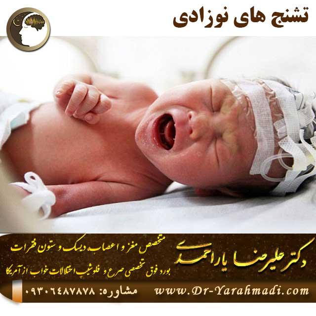 تشنج های نوزادی