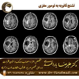 تشنج-ثانویه-به-تومور-مغزی
