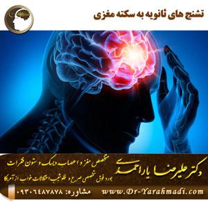 تشنج های ثانویه به سکته مغزی